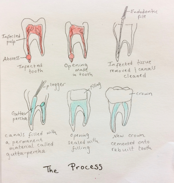 Week 2 The Root Of The Matter Or The Tooth About Root Canals
